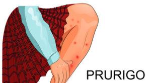 Prurigo - Juckenende Haustellen
