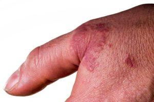Knötchenflechte auf einer Hand