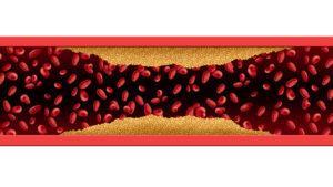 Arterie die sich verengt Darstellung Schaufensterkankheit