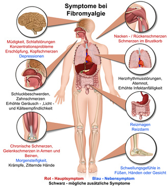 Fibromyalgie Symptome Grafik