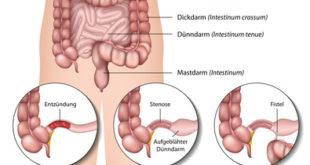 Morbus Crohn Symptome graphische Darstellung