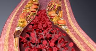 Arteriosklerose durch falsches Essen -Graphik