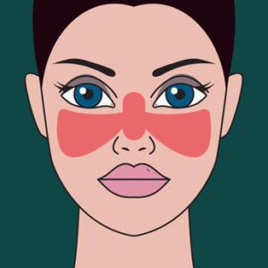 Lupus Krankheit. Frau mit roter Stelle auf ihrem Gesicht in Form des Schmetterlinges.